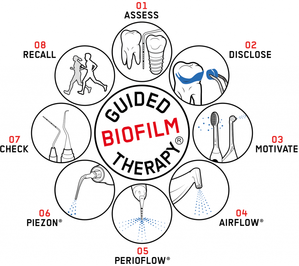 Guided Biofilm Therapy Diagram